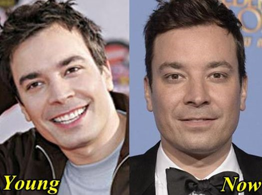Jimmy Fallon before and after plastic surgery