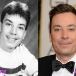 Jimmy Fallon before and after plastic surgery 04