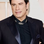 John Travolta after using Botox injections
