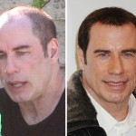 John Travolta before and after hair implant