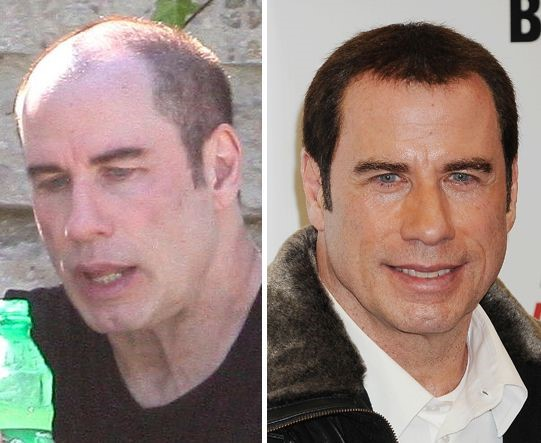 Image result for john travolta cosmetic surgery