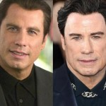 John Travolta before and after plastic surgery 02
