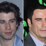 John Travolta before and after plastic surgery 03