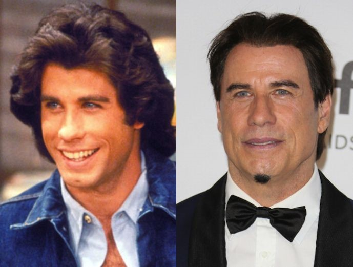 John Travolta before and after plastic surgery