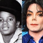 Michael Jackson before and after many plastic surgeries