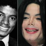 Michael Jackson before and after plastic surgery 03