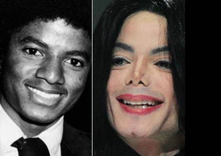 Michael Jackson before and after plastic surgery 03 ...