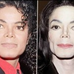 Michael Jackson before and after plastic surgery (2)