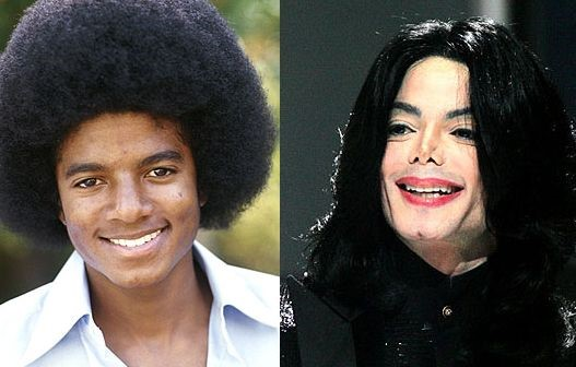 Michael Jackson before and after plastic surgery
