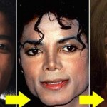 Michael Jackson cosmetic surgery disaster