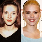 Scarlett Johansson before and after plastic surgery 02