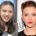 Scarlett Johansson before and after plastic surgery 03