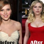 Scarlett Johansson before and after plastic surgery 05