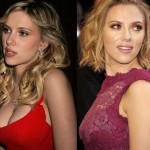 Scarlett Johansson before plastic surgery 04