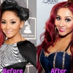 Snooki before and after breast augmentation