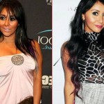Snooki before and after plastic surgery 02
