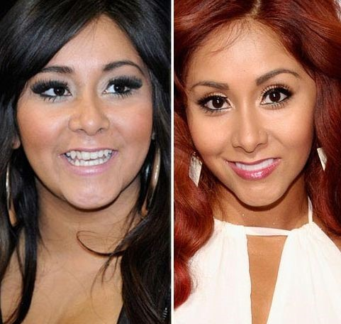 Snooki before and after plastic surgery, nose job and dental work