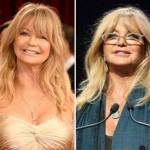 Goldie Hawn before and after plastic surgery 02