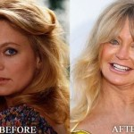 Goldie Hawn before and after plastic surgery 04