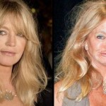 Goldie Hawn before and after plastic surgery 05