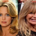 Goldie Hawn before and after plastic surgery