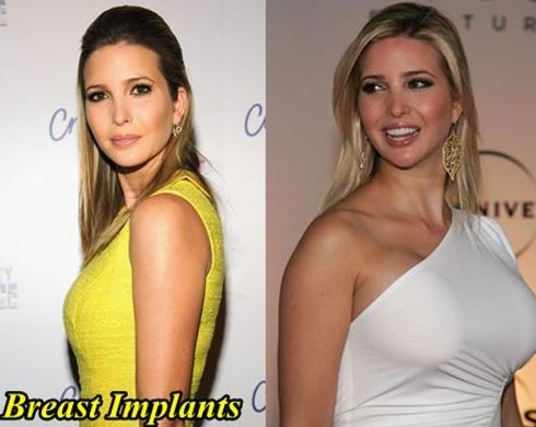 Ivanka Trump before and after breast implants – Celebrity ...