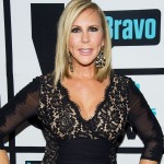 Vicki Gunvalson after plastic surgery