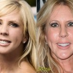 Vicki Gunvalson before and after botox injections