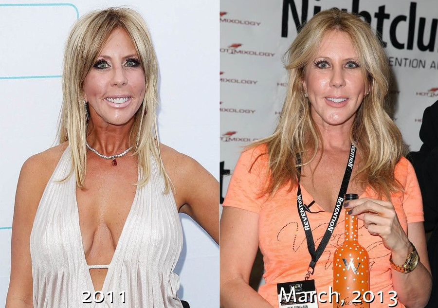 Vicki Gunvalson before and after plastic surgery