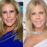 Vicki Gunvalson before and after plastic surgery 01