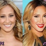 Adrienne Bailon before and after plastic surgery 02