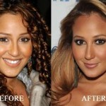 Adrienne Bailon before and after plastic surgery 03