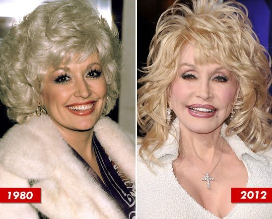 Dolly Parton before and after plastic surgery