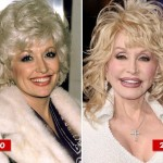 Dolly Parton before and after plastic surgery 01