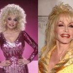 Dolly Parton before and after plastic surgery 02