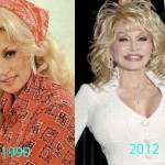 Dolly Parton before and after plastic surgery 03