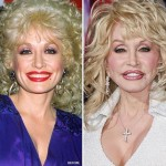 Dolly Parton before and after plastic surgery 04
