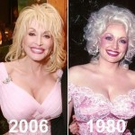 Dolly Parton before and after plastic surgery 05
