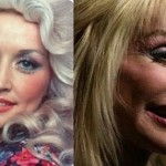 Dolly Parton before and after plastic surgery 06