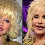 Dolly Parton before and after plastic surgery 07