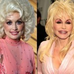 Dolly Parton before and after plastic surgery 08