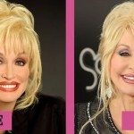 Dolly Parton before and after plastic surgery 09