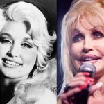Dolly Parton before and after plastic surgery 10