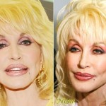 Dolly Parton then and now