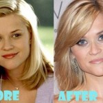 Reese Witherspoon before and after plastic surgery 03