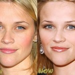 Reese Witherspoon before and after plastic surgery 04