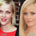 Reese Witherspoon before and after plastic surgery 06