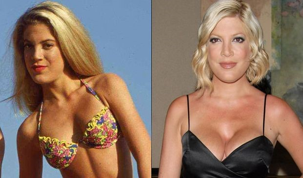 Tori Spelling before and after plastic surgery