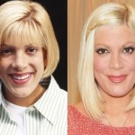 Tori Spelling before and after plastic surgery 02