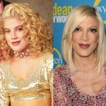 Tori Spelling before and after plastic surgery 03